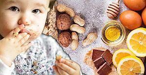 Çocuklarda besin alerjisi belirtileri nelerdir,
